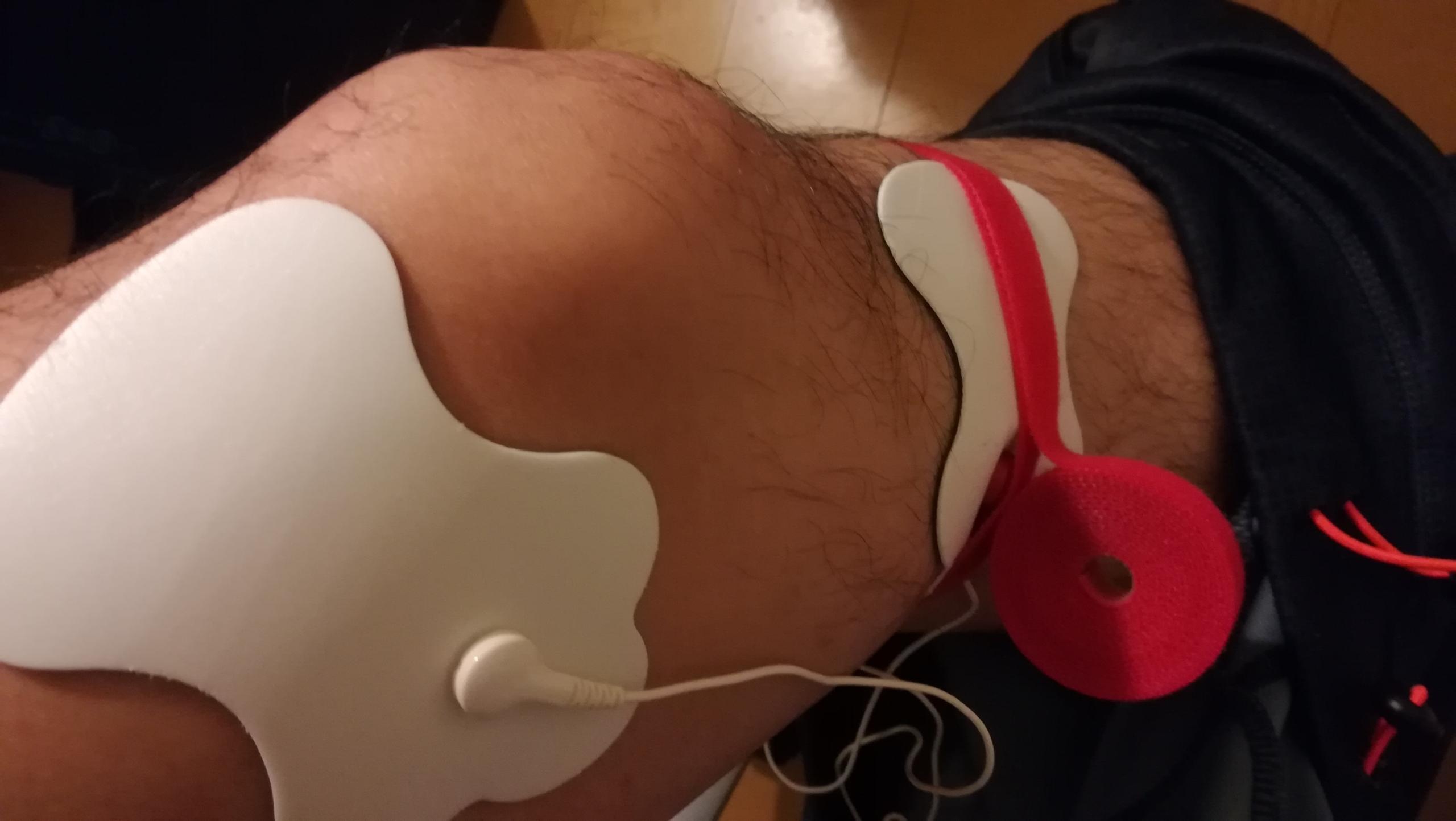 【膝痛緩和に5つの対策】坂道ウォーキングで急に激痛!!鵞足炎?変形性膝関節症?